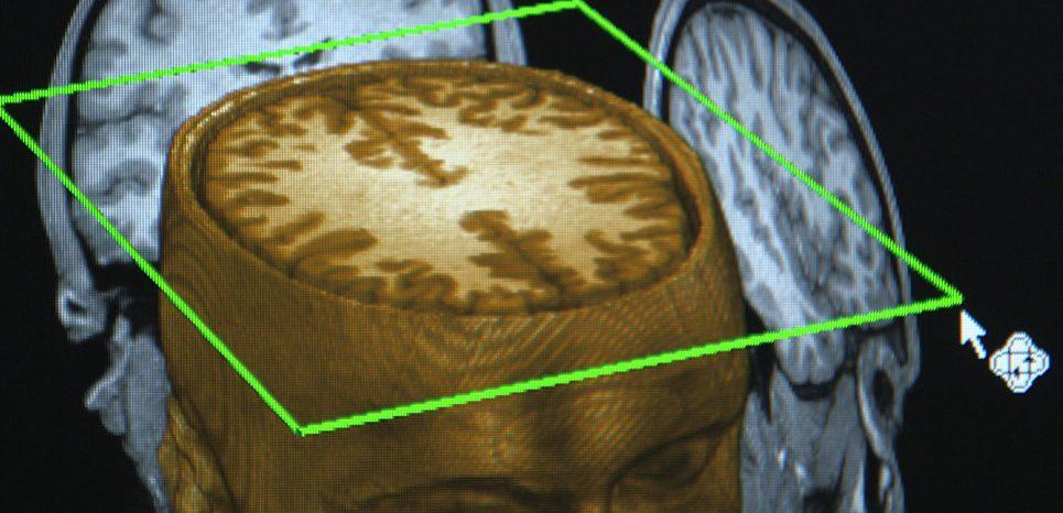 Coupe du cerveau avec hémisphères mis en évidence