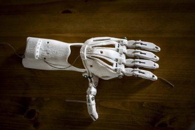 prothèse de main imprimé à l'aide d'une imprimante 3D